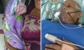 Indijka u 73. godini rodila dvojke, muž nakon saznanja doživio moždani udar