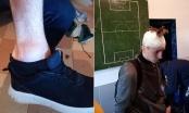 Mladi nogometaš na meču treće lige BiH pogođen pivskom flašom u glavu